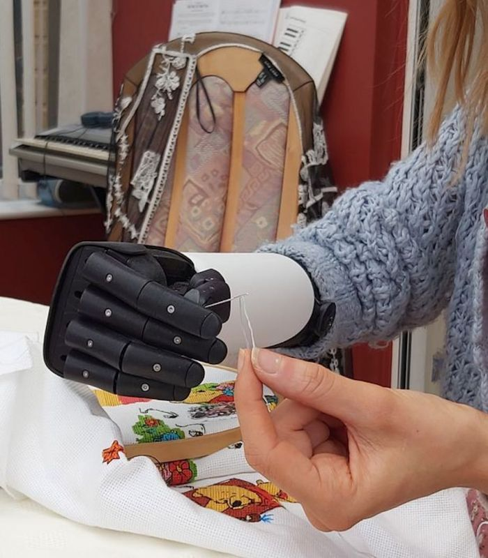 Bionic Arm Opens Up New World For Teacher